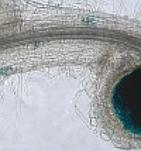 vignette racine nodosité Infection épidermique